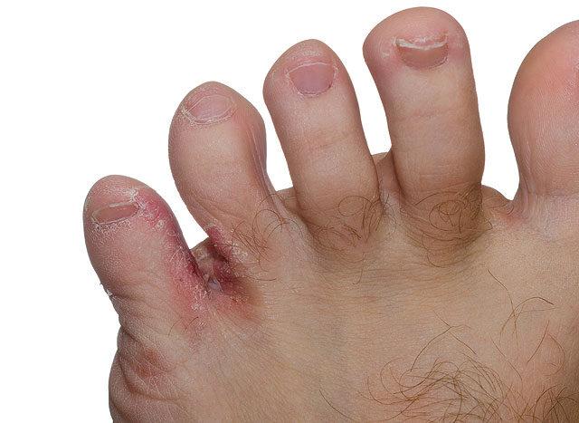 az ujjak közötti seb kezelése)