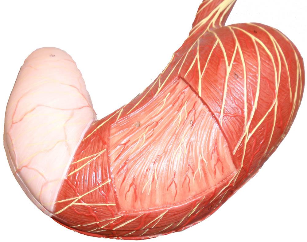 A gyomorrák tünetei és rizikófaktorai