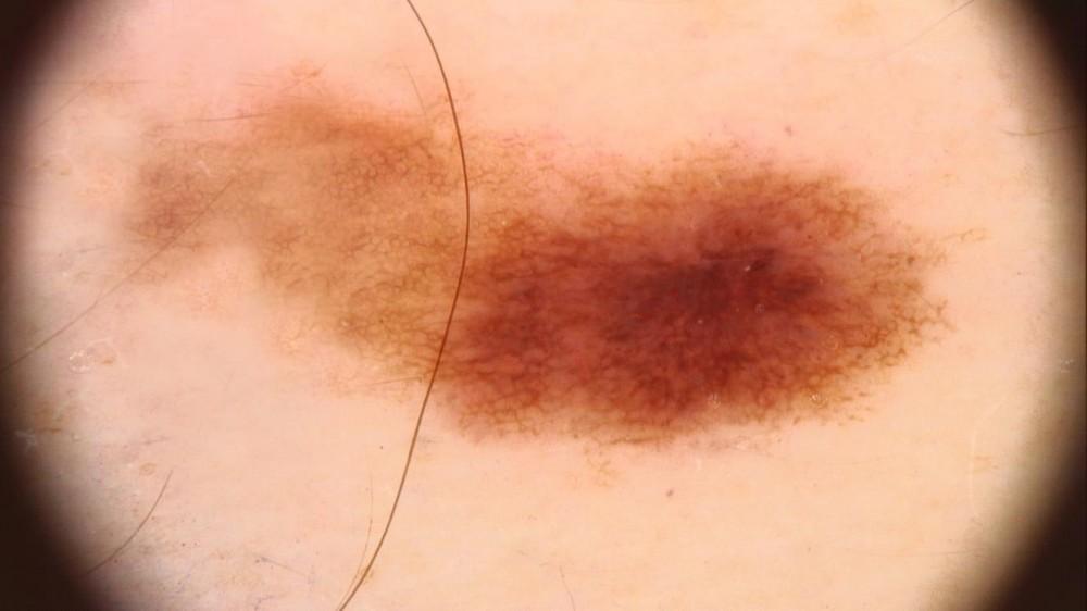 hpv bőrrák tünetei