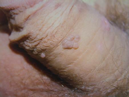 hpv condyloma kezelés szarvasmarha papillomavírus kezelése
