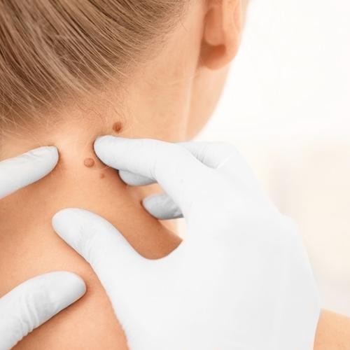 bőrrák jóindulatú daganatok