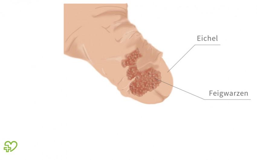 Mintavetel duodenal, Papilloma warzen. Übersetzung für