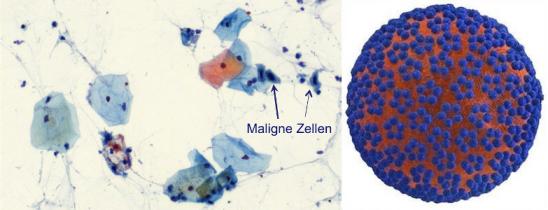 ami összekeverhető a szemölcsökkel tisztítsa meg a tablettákat a parazitáktól