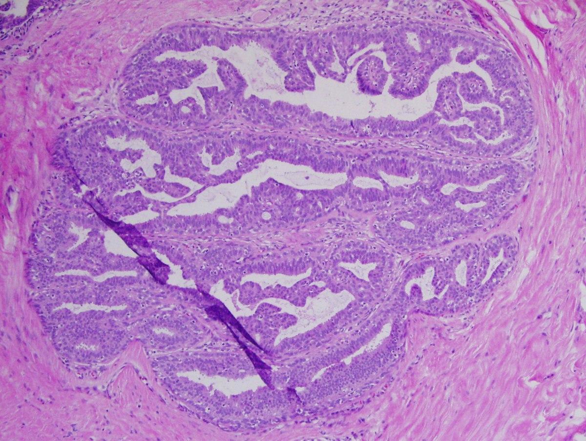 intraductalis papilloma hyperplasia parazita kezelés kiütések esetén