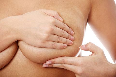 Intraductalis papillómák terhesség alatt - Condyloma a kis ajkakon
