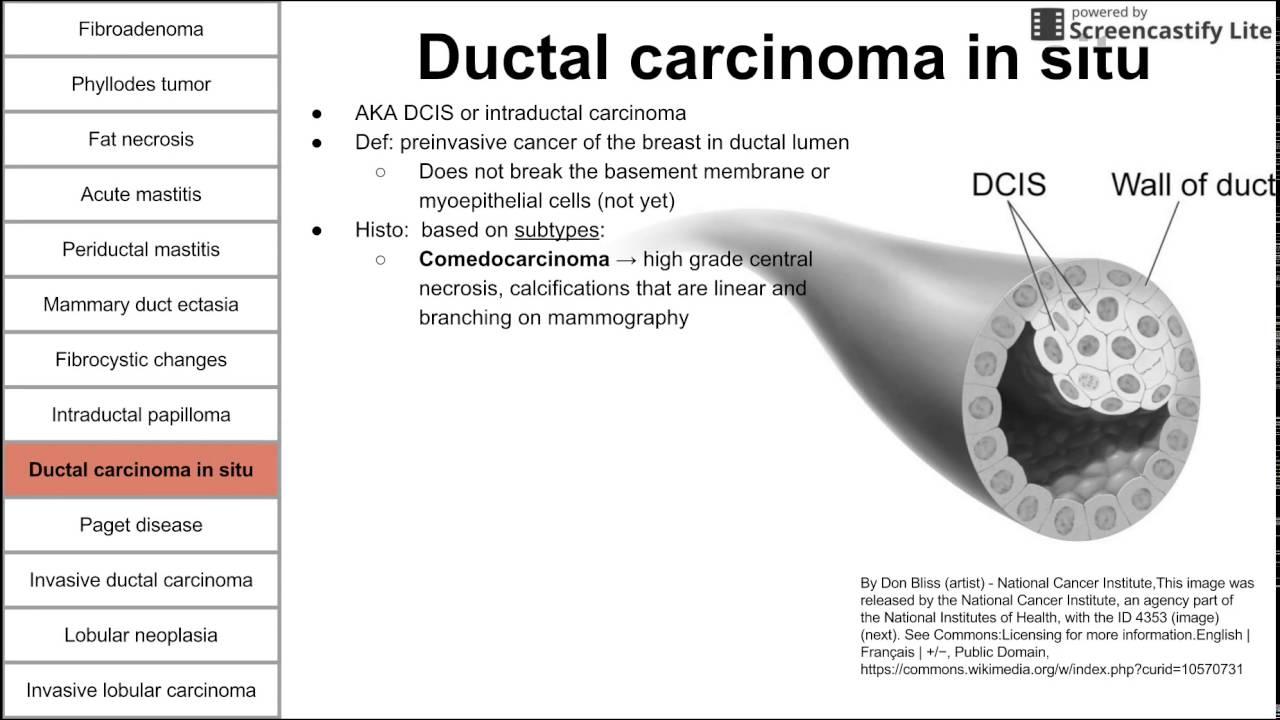 intraductalis papilloma tumor