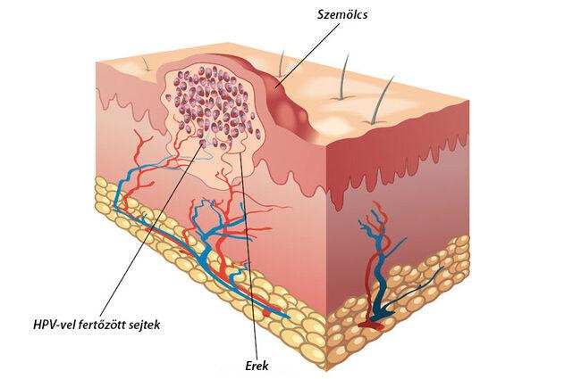 papilloma elleni kezelés