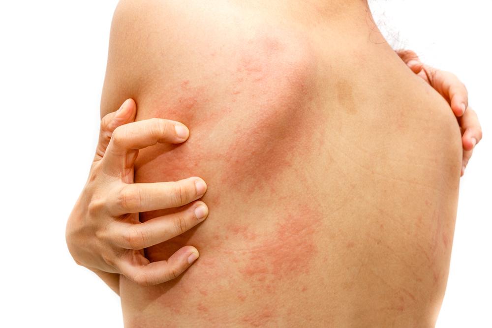 méregtelenítés bőr tünetei