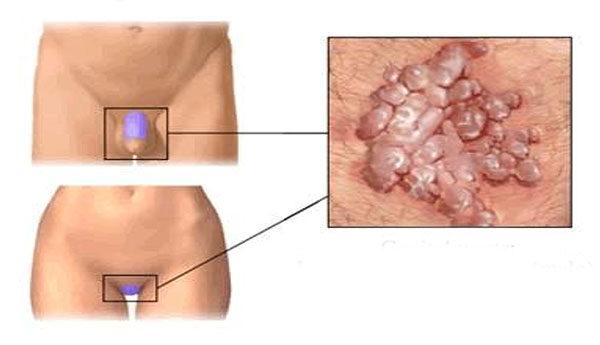 Exofita és endofita kondilomák