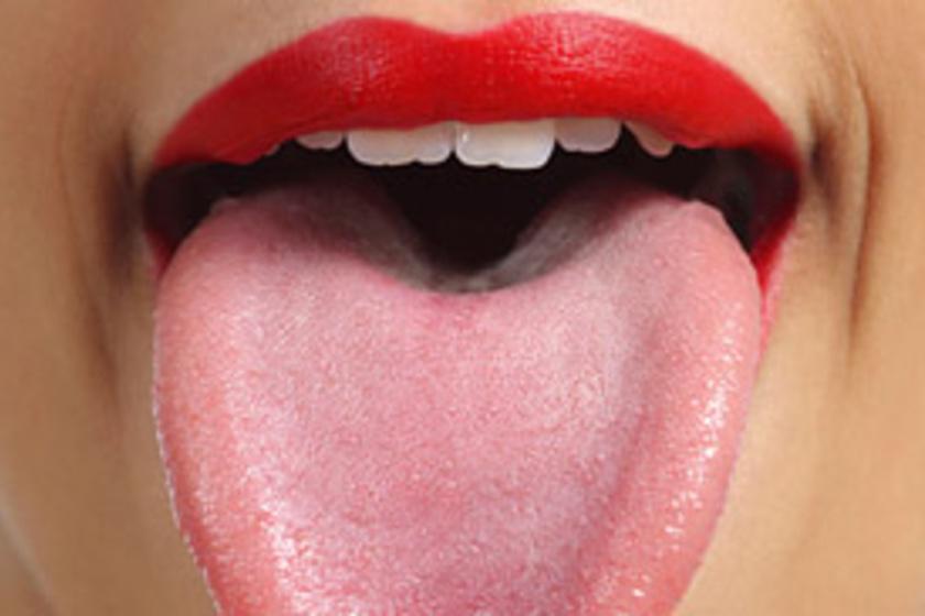papilloma a nyelv okozta)