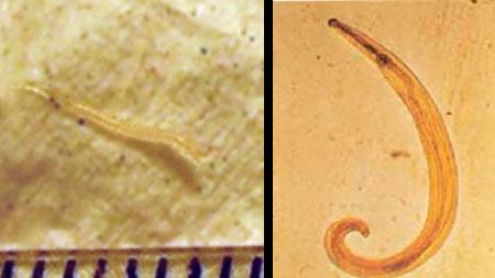 paraziták enterobius vermicularis hpv és rákos sejtek
