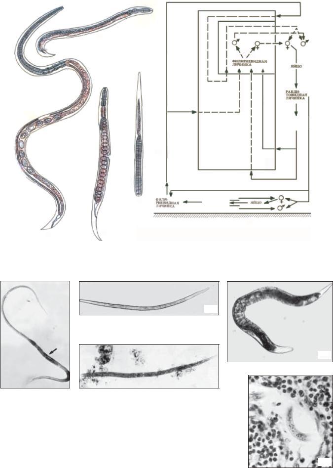 parazitológia trichocephalosis parazita tisztító hatás
