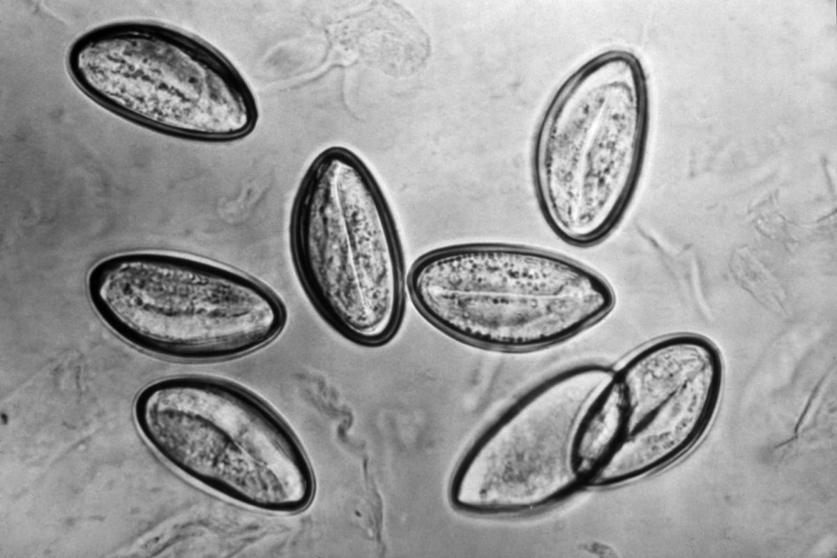 petesejtek oxyuris vermicularis