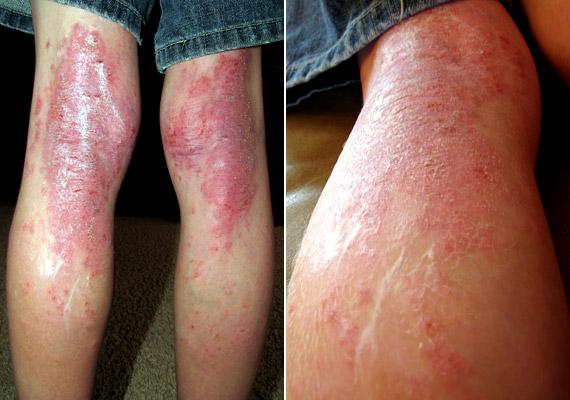 Pikkelyes papilloma bőr, Dermoid tömlő, cysta pilonidalis, sinus pilonidalis, dermoid cysta