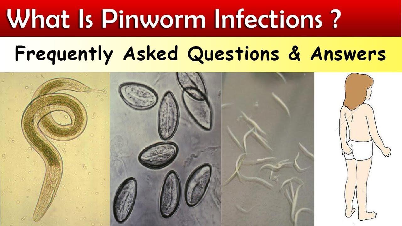 pinworm továbbította a tüneteket és megakadályozta