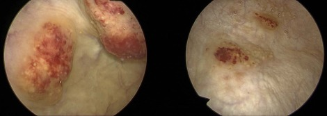 schistosomiasis hematuria féreg tabletták 1 nap alatt