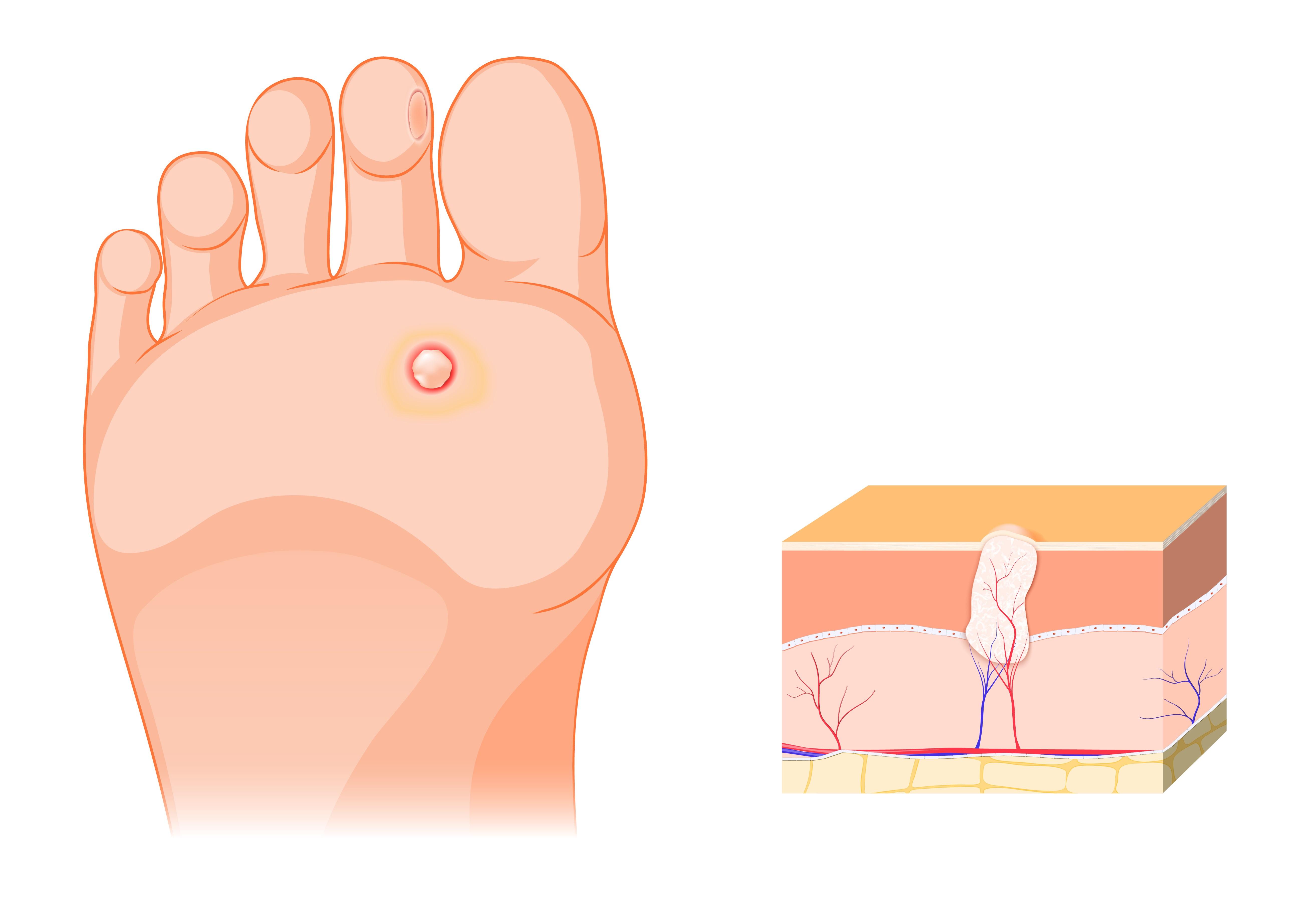 Hogyan lehet csirke szemölcsös gyalog - Bőrgyulladás October