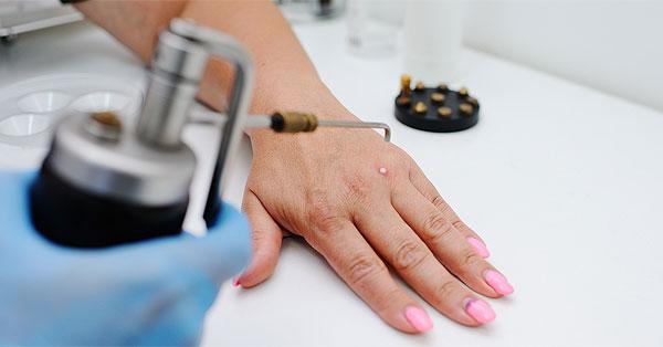 papillomavírus elleni oltásról szóló értesítés