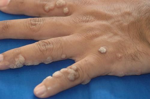 parazitaellenes szer összetétele amelyből a condyloma kialakulhat