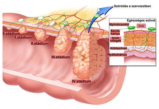 vastagbélrák és tünetei
