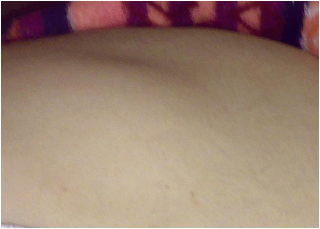 Bőrkinövés eltávolítása