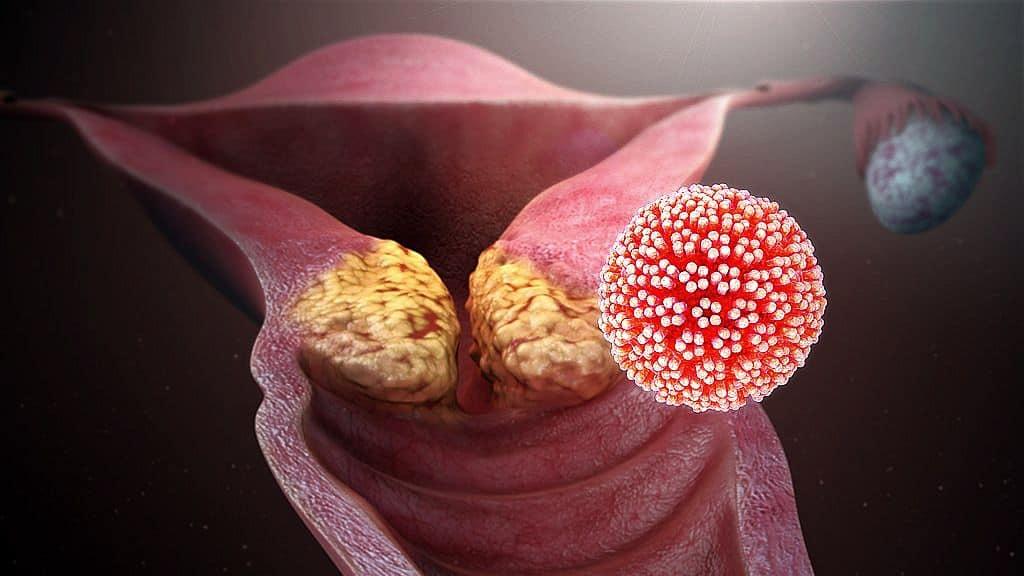 alacsony papilloma vírus