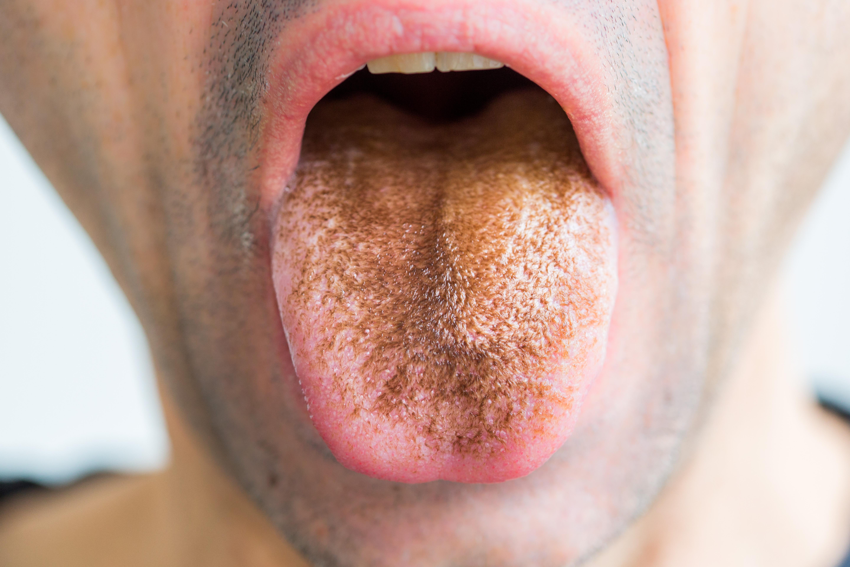 szemölcs a nyelv eltávolításakor