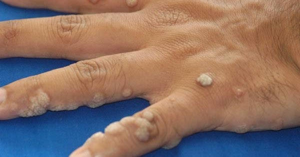 A HPV-t teszik felelőssé a méhnyakrákért | FEOL