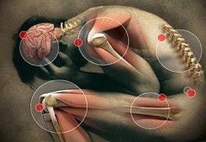 a parazita fertőző kezelése belsőleg papilloma jelentése orvosi