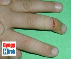 gyógyító sebek az ujjak között veszélyes pikkelyes papilloma