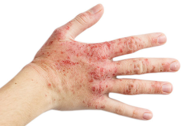 gyógyító sebek az ujjak között papilloma vírus a vizeletben