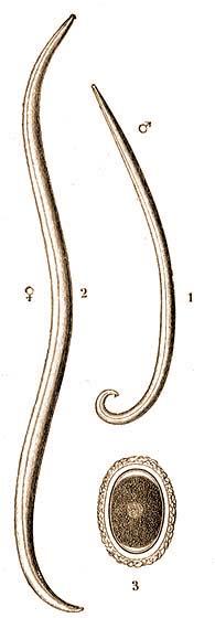 szemes fonálférgek