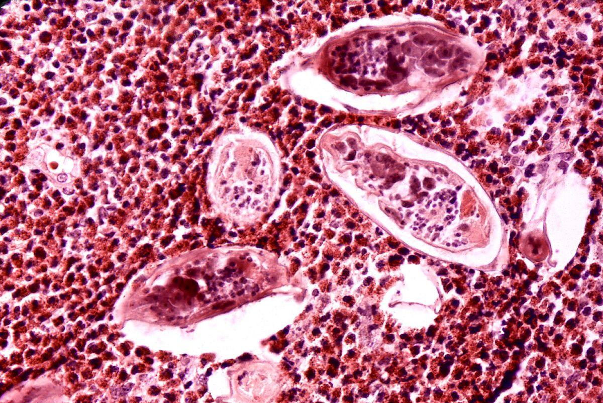 Húgyúti schistosomiasis