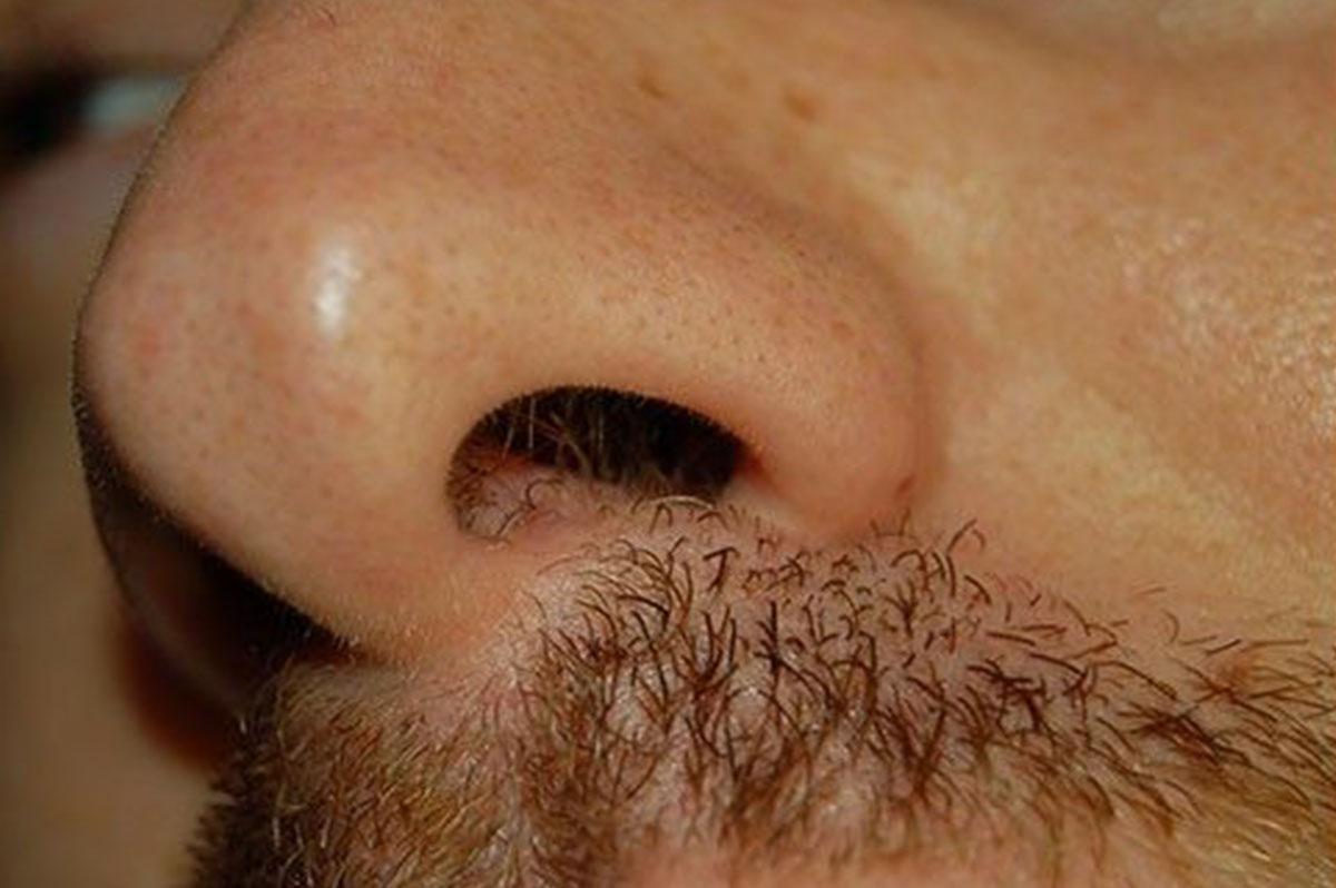 toxin mit kell tenni paraziták a fej kezelésén