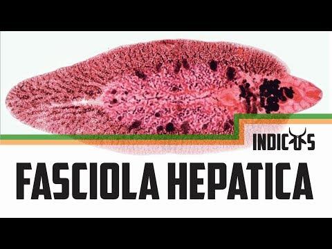 Fascioliasis adolescari