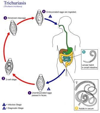 Helminthiasis medscape - A vermox hatékonysága giardiasisban