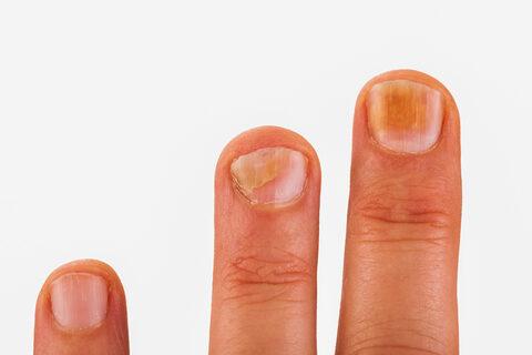 tünetei és a körömférgek kezelése helminthiasis a gyermekgyógyászatban