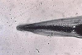 enterobius vermicularis behandeling