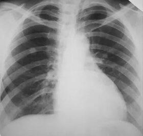 jóindulatú tüdőrák a genitális szemölcsök eltávolításának folyamata
