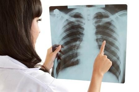 jóindulatú tüdőrák tabletta az emberi test parazita ellen