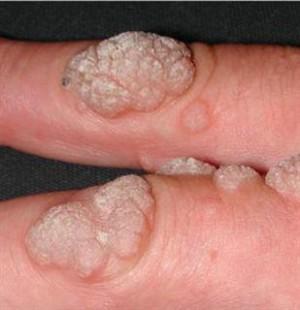 Papillomavirus szemolcs - Rimedi naturali per debellare gli ossiuri