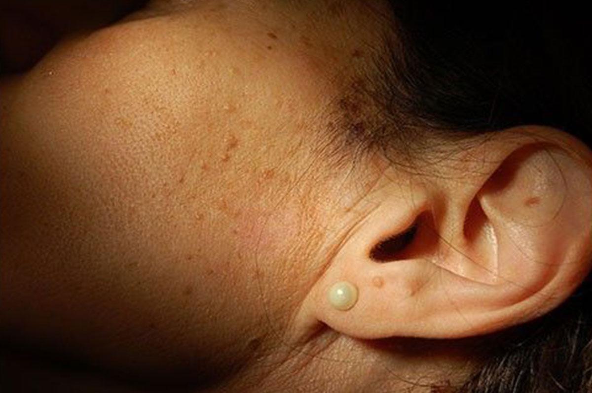 kartoffeln toxinok képek a nemi szemölcsökről