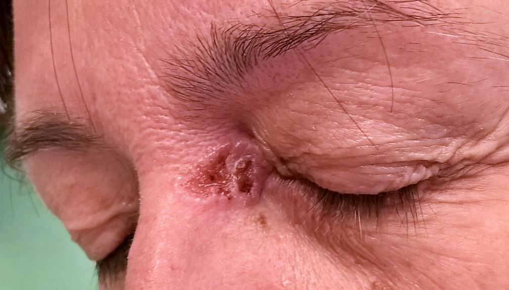A melanoma - Mutáció.hu