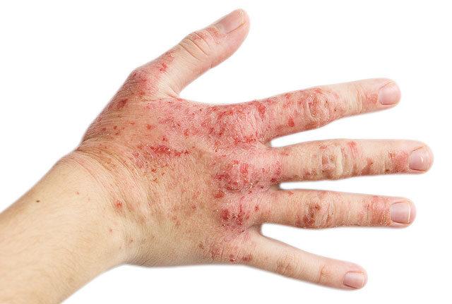 az ujjak közötti seb kezelése