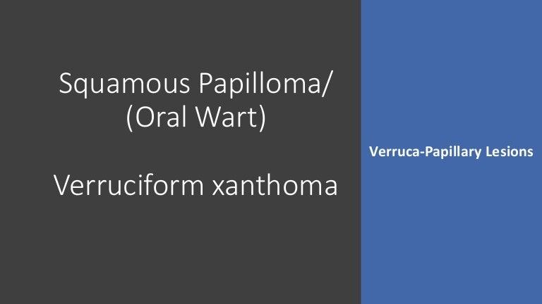 a húgyhólyag papilloma meghatározása ano ba az emberi papillomavírus