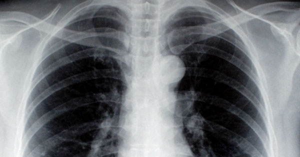 jóindulatú tüdőrák az ajkán papilloma
