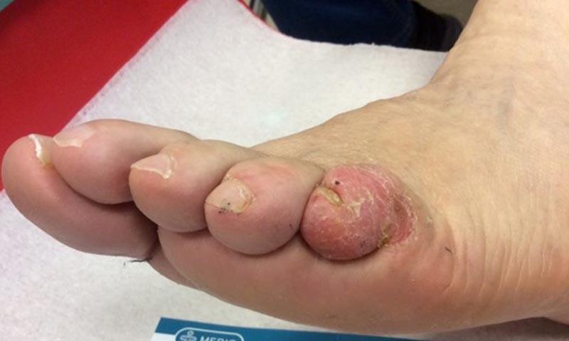 a lábujjak közötti sebek kezelése