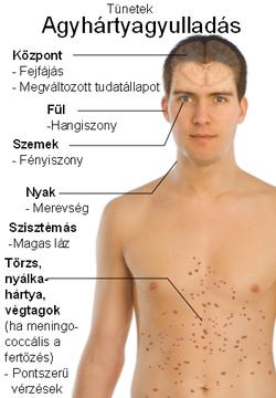 helmint fertőzés előfordulása