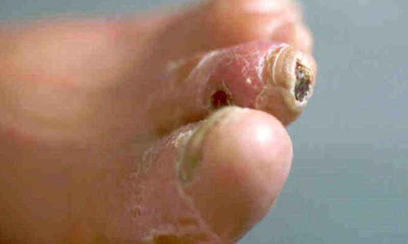 az ujjak közötti seb kezelése metasztatikus hasnyálmirigyrák