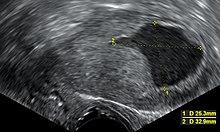 endometrium rák és tamoxifen hogyan lehet eltávolítani a papillómát a torokban